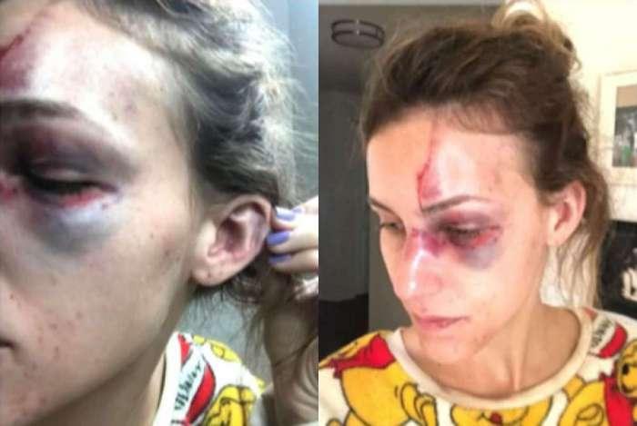 Estudante brasileira é vítima de violência doméstica nos EUA; ex-namorado está preso